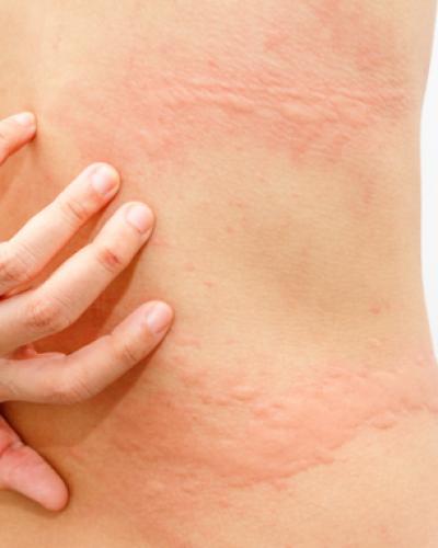 Urticaire : tout sur les plaques rouges sur la peau